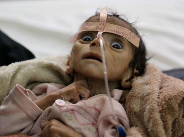 yemenchild